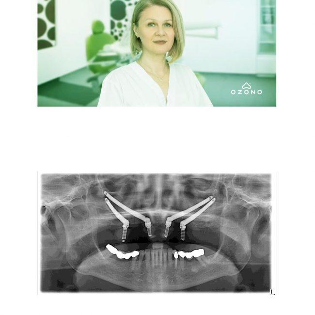 Implanturile zigomatice | Soluția reabilitărilor dentare complicate